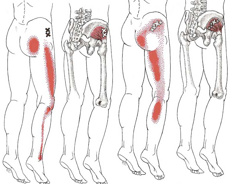 Referral patterns and trigger points in the gluteus minimus