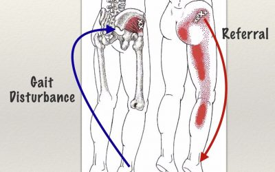 Hyperpronation, A Major Key To Sciatic Pain