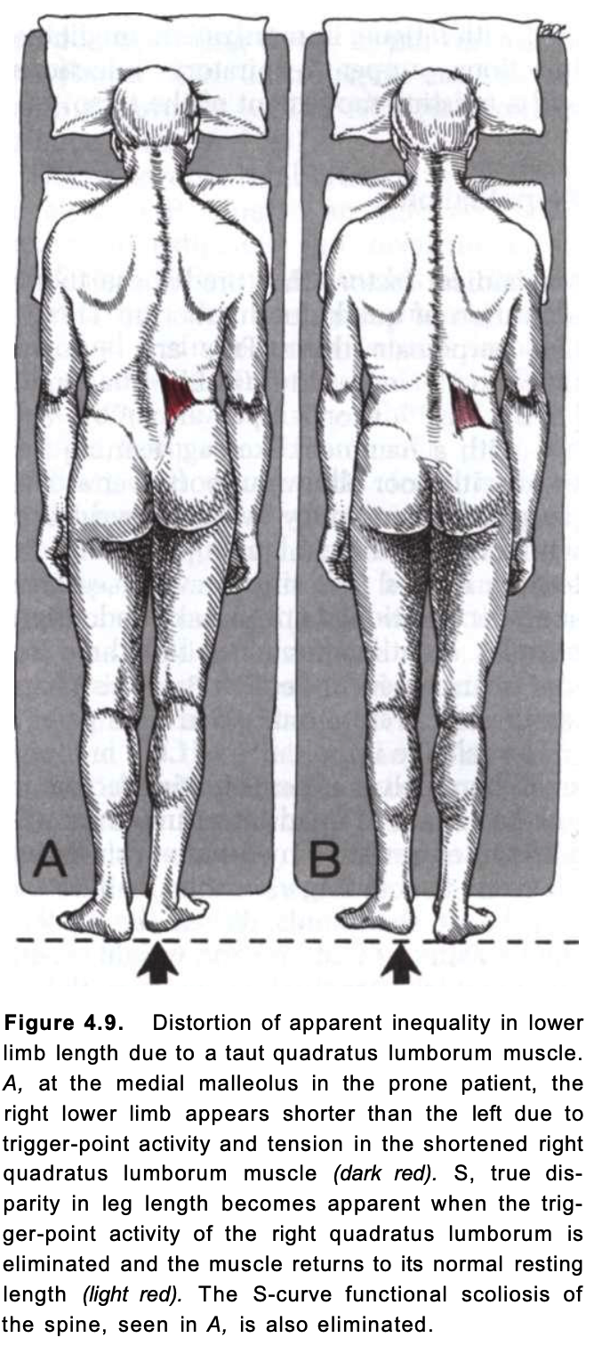 Distorted leg length measurement when not weight-bearing due to taut QL.