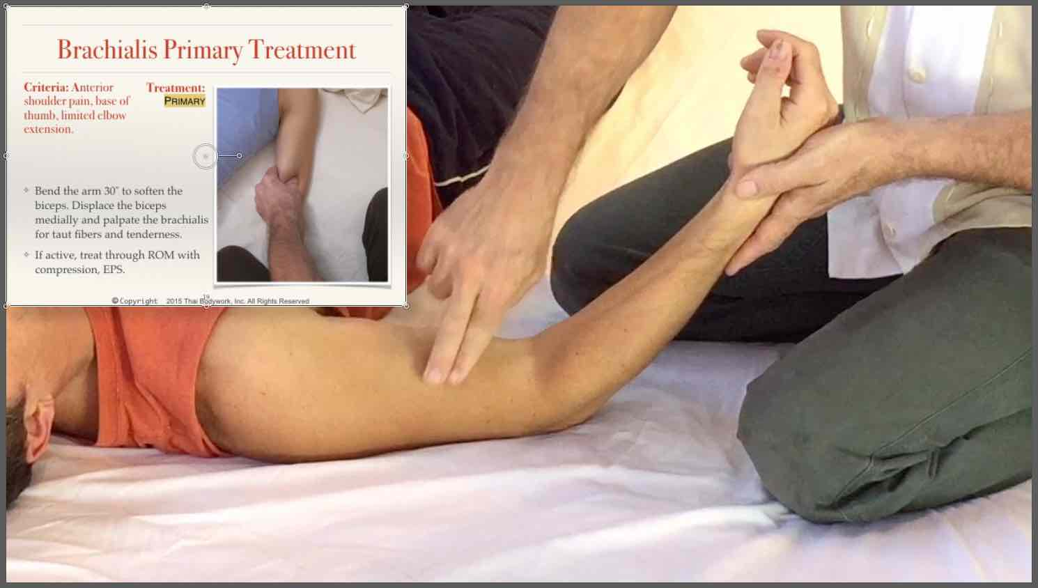 Treating brachialis in Clinical Thai Bodywork for Shoulder Pain