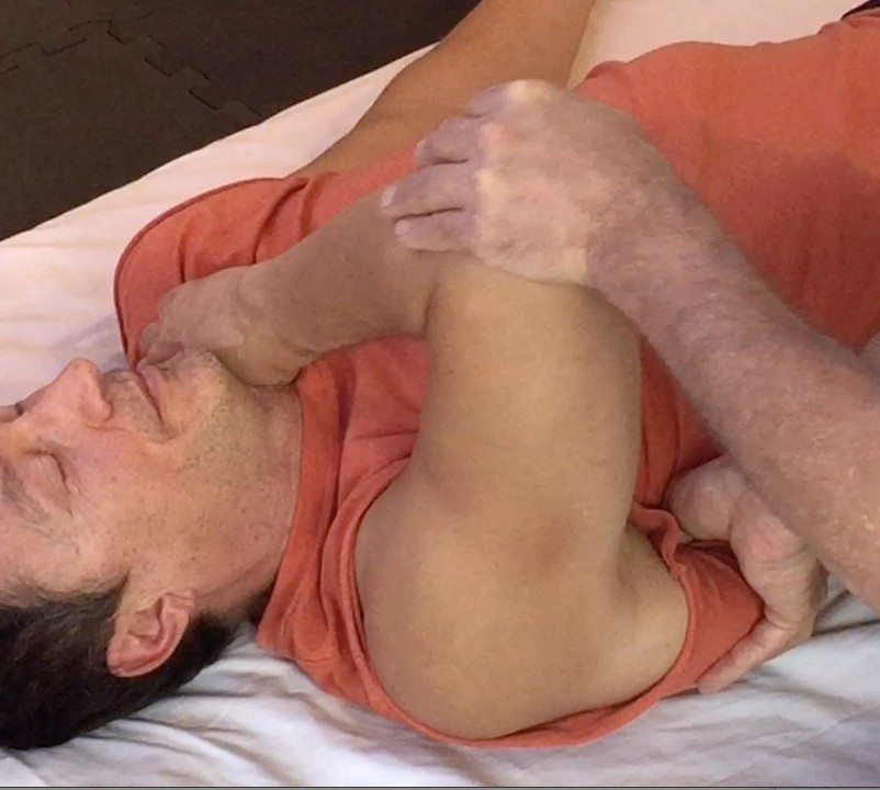 Treating the subscapularis
