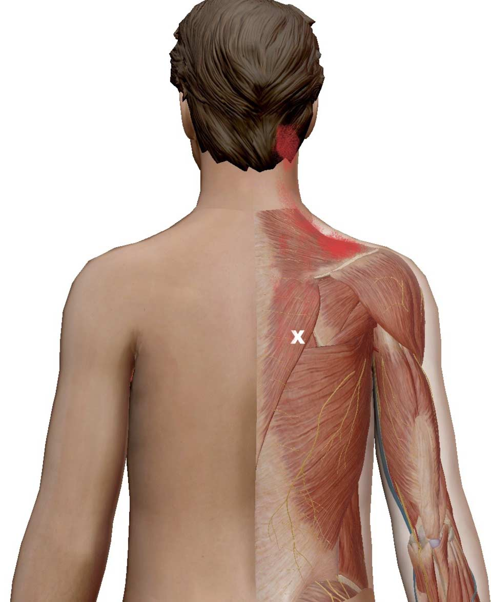 The referral zone of the low trap covers much of the mid and upper trapezius, which is a satellite