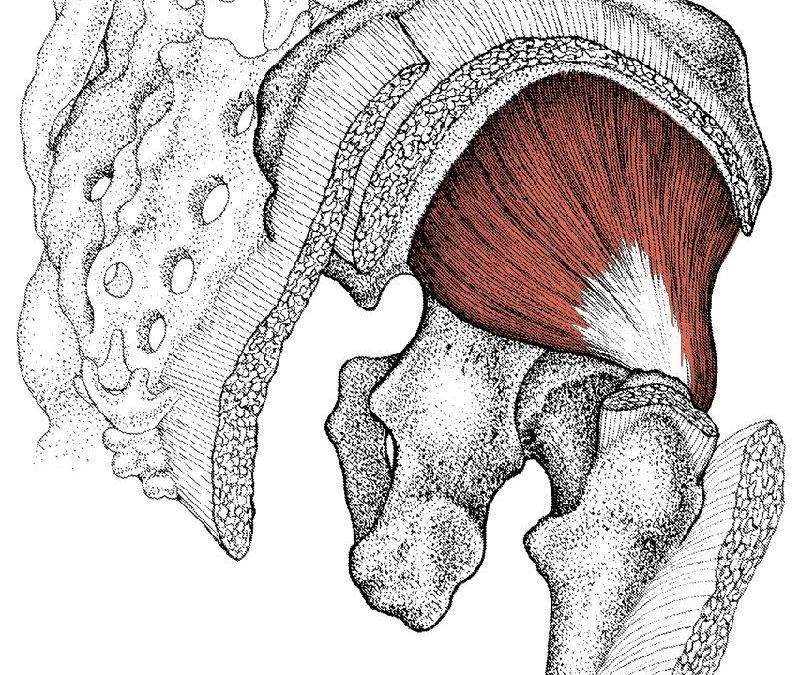 Treating Sciatica With CTB By Addressing Gluteal Trigger Points