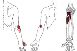 Supinator muscle trigger point referral and anatomy